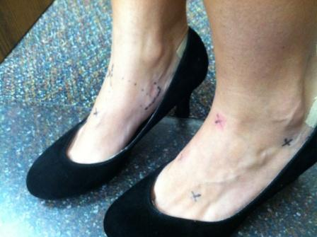 Dorsalis Pedis Pulse Friday Update 9/28/12 ...